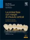 La protesi fissa con chiusura verticali