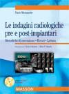 Le indagini radiologiche pre e post-implantari