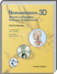 Neuroangiografia 3D