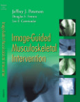 Image-Guided Musculoskeletal Intervention