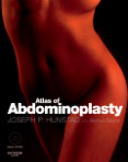 Atlas of Abdominoplasty with DVD