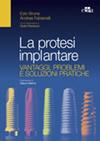 La Protesi Implantare